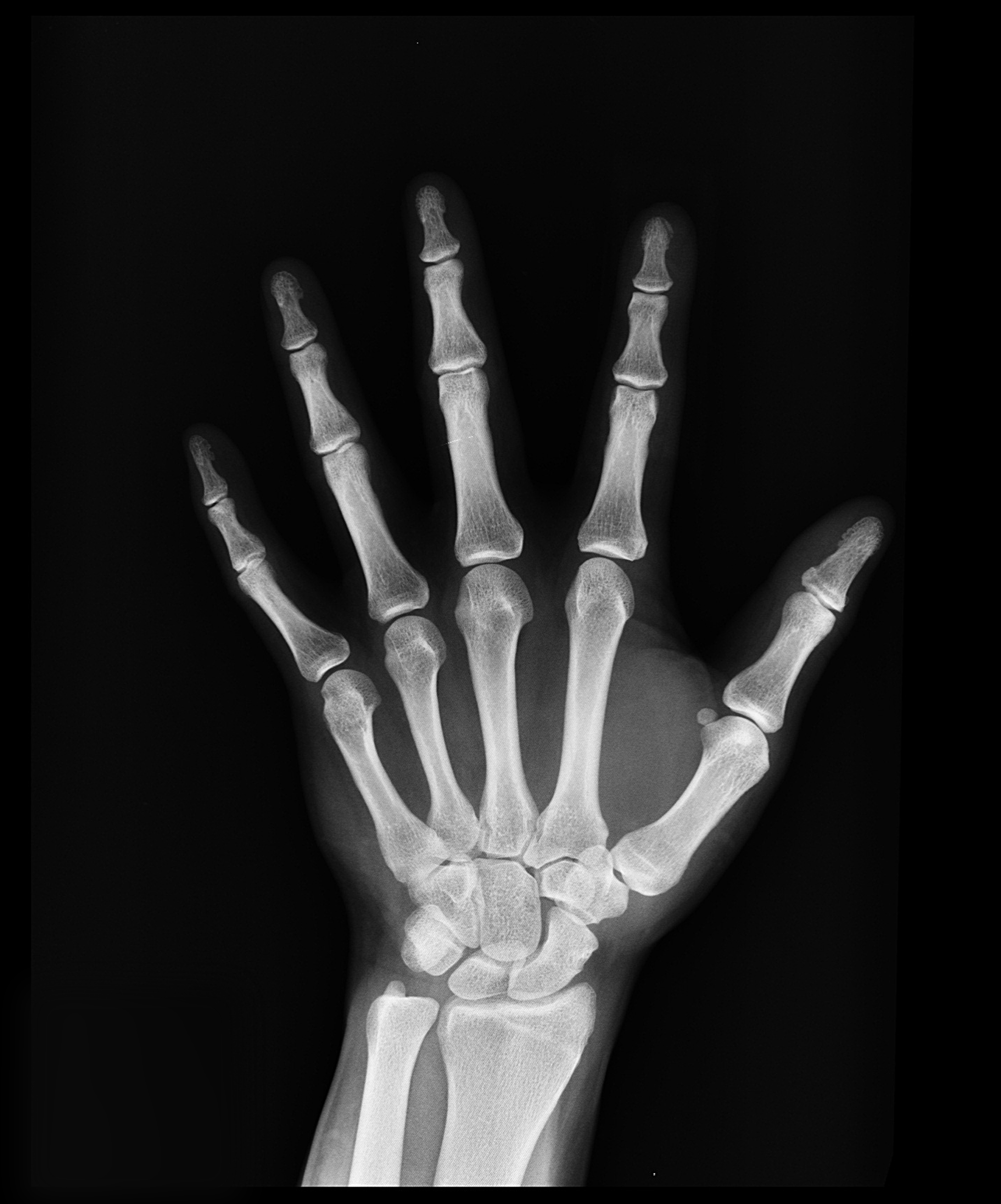Black And White Bones Hand 207496 American Society For Nutrition
